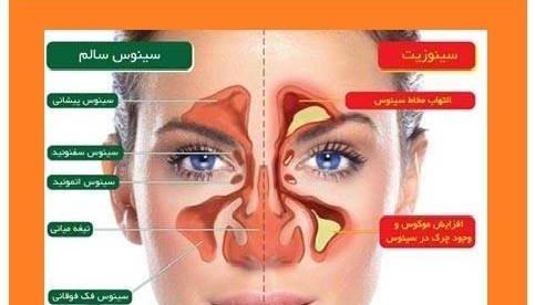 درمان معجزه آسای سینوزیت و عفونتهای تنفسی