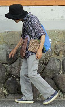 سن ابتلا به بیماری پوکی استخوان در زنان چه زمان است؟