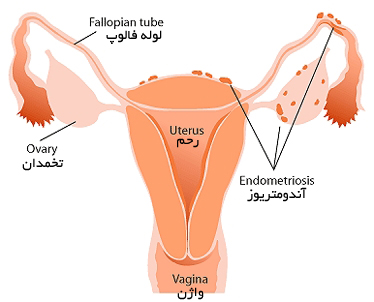 اندومتریوز چیست و علایم اندومتریوز کدامند ؟