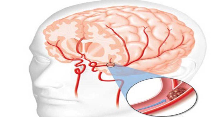 راه های ساده برای جلوگیری از سکته مغزی