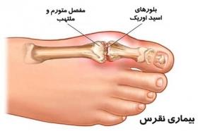 درد شست پا را جدی بگیرید