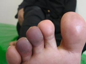 گفتگوی اختصاصی/ سلول درمانی باعث تسریع در بهبود زخم پای دیابتی میشود